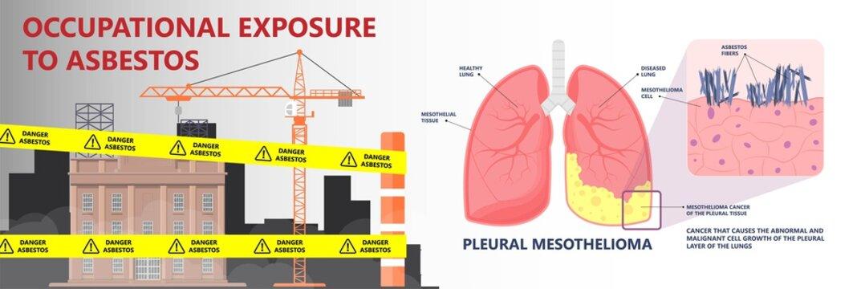 Asbestos breath chest pain testes ascites Hydrocele scrotum Swollen Difficulty fluid pleura testicle tunica vaginalis dust tract safe safety carcinogen smoking hazard danger tissue toxic silica copd