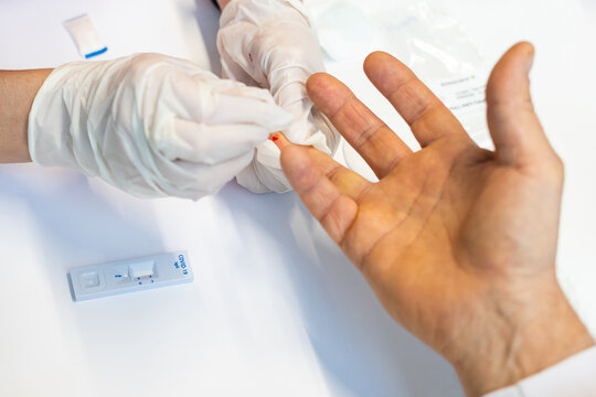 Medical technician EMS doctor taking finger prick PRP patient blood sample using pipette,Coronavirus COVID-19 global pandemic crisis outbreak,UK NHS rapid strep diagnostic antibody testing procedure