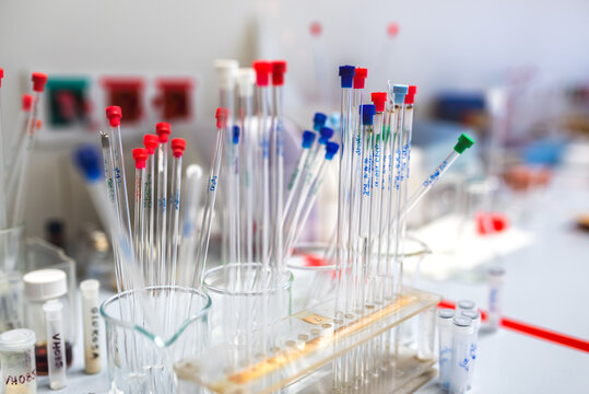 Sample tubes for NMR spectoscopy method, scientific research background, colorful tips on tubes, selective focus