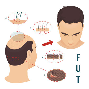 Male hair loss treatment with follicular unit transplantation. Stages of FUT procedure. Alopecia infographic medical design. Clinics and diagnostic centers concept design. Vector illustration.
