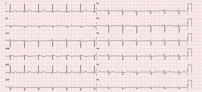 ECG example of a normal 12-lead sinus rhythm