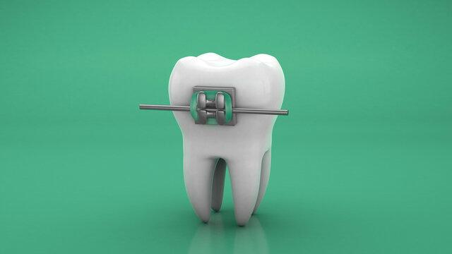 Teeth braces. Green background. 3d render