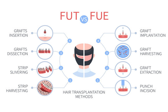FUE vs FUT medical infographics. Follicular unit extraction versus follicular unit transplantation. Types of hair transplant procedures and their stages. Male alopecia treatment. Vector illustration.