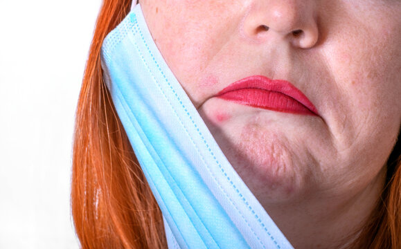 Middle-aged woman is struggling with maskne, red spots caused by wearing a face mask