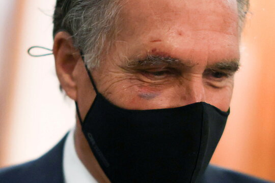 U.S. Senator Romney sports a bit of a black eye and small facial cuts as he speaks with reporters at the U.S. Capitol in Washington