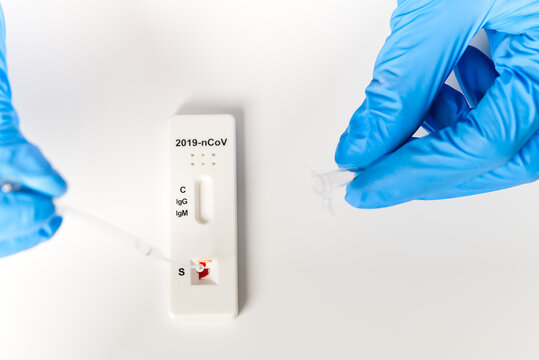 Covid rapid test. Negative test result by using rapid test device for COVID-19 coronavirus