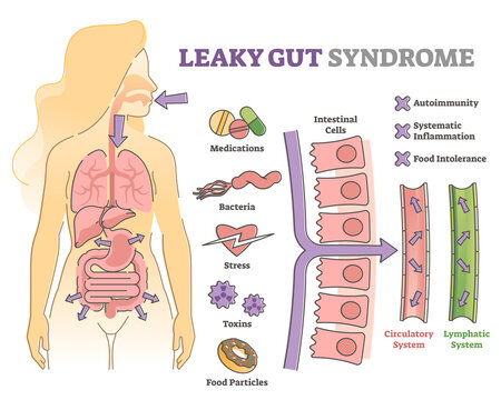 Leaky gut syndrome as immune system reaction to environment outline diagram