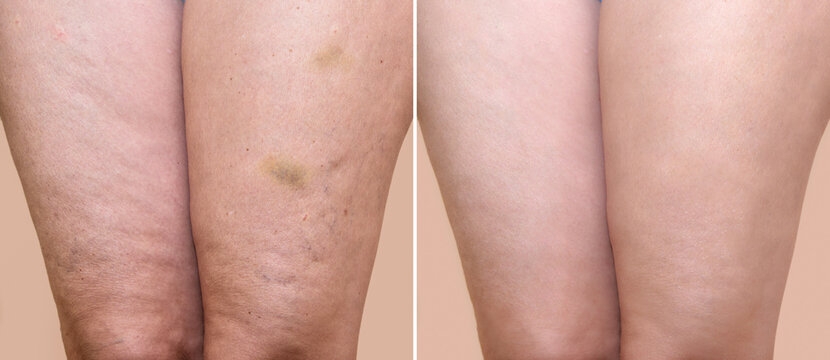 Thighs of a woman with cellulite and bruises before and after medical treatment