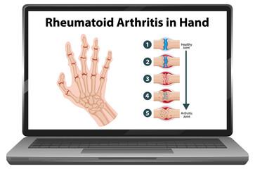 Rheumatoid arthritis symptoms on hand on laptop screen