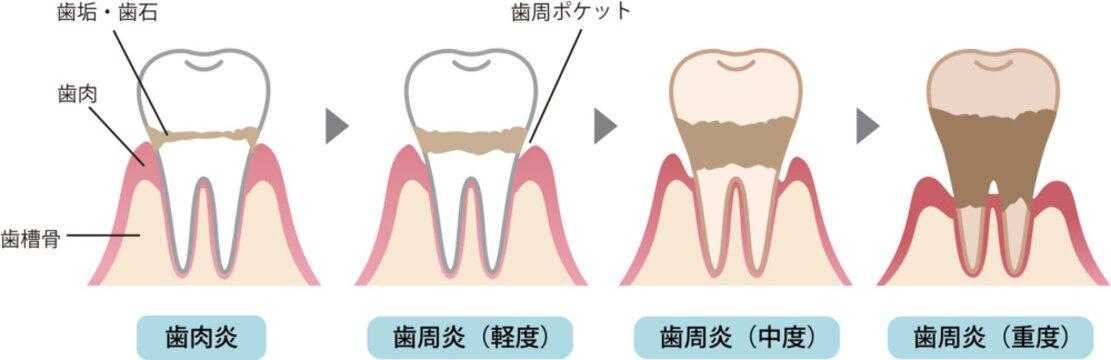 歯周病の過程