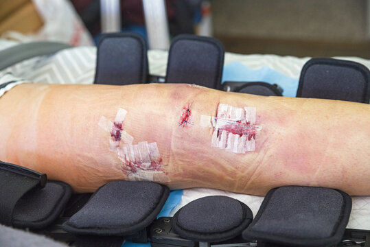 Knee After ACL and MCL Reconstruction Surgery