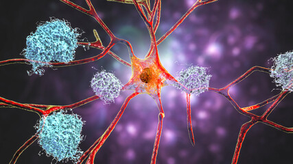 Neurons in Alzheimer's disease. Illustration showing amyloid plaques in brain tissue Wall mural