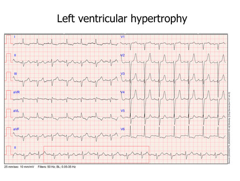 ecg left ventricular hypertrophy. real ecg from a patient that was hospitalized at the cardiac care unit