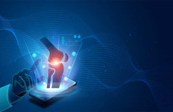 Technology for treatment of knee bone. Abstract traumatology and orthopedics. Medical science in the hospital for body joints.