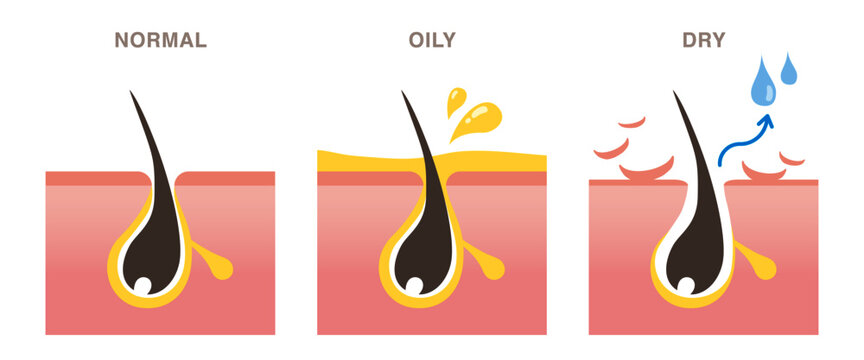 Skin cross section of pore types. Normal, oily, and dry pores. Pale colored illustration in flat cartoon style.