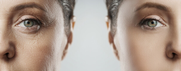 Obraz Female face after incredible rejuvenation process or heavy retouching - fototapety do salonu