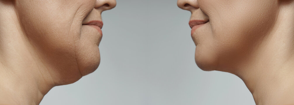 Double chin removal, facelift and neck liposuction