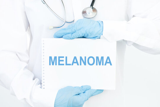 Doctor holds a notebook with the name of the diagnosis melanoma. Selective focus. Medical concept.