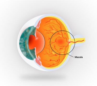 Medical illustration to explain macular degeneration