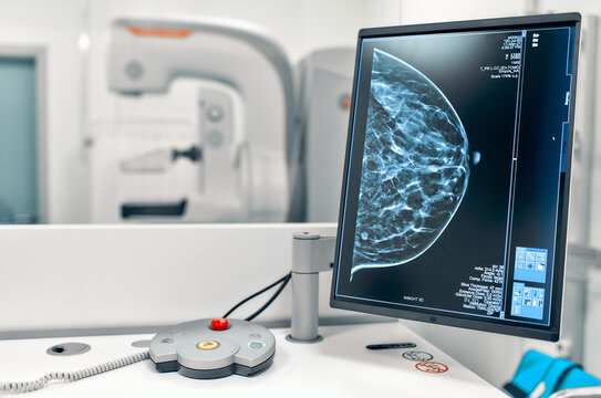 Mammogram snapshot of breasts of a female patient on the monitor with undergoing mammography test on the background. Mammography test at the hospital. Medical equipment.