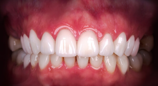 Perfect smile after veneers bleach of zircon arch ceramic prothesis Implants crowns. Dental restoration treatment clinic patient . Result of oral surgery procedure whitening dentistry