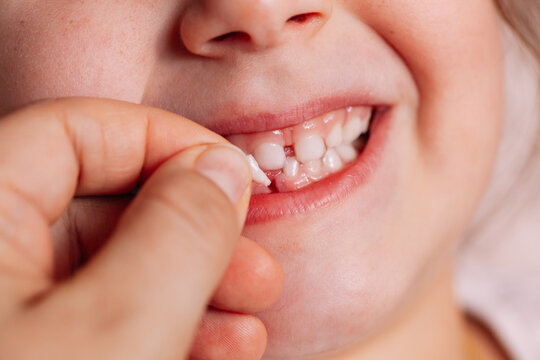 close-up the doctor's hand holds the first fallen baby tooth near the wound on the lower row of teeth of the child's open mouth.