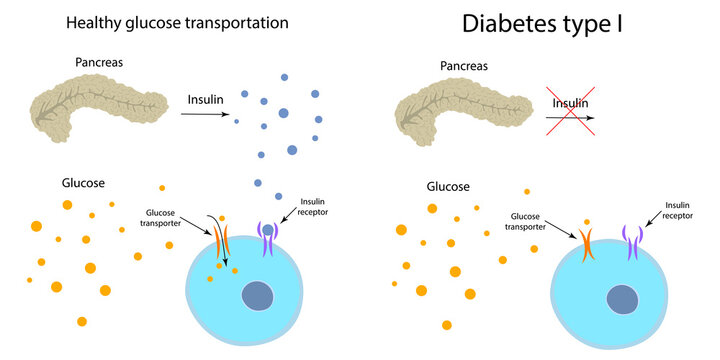 Diabetes type 1 and healthy transportation comparison. Pancreas, insulin receptor, glucose transporter, cell.