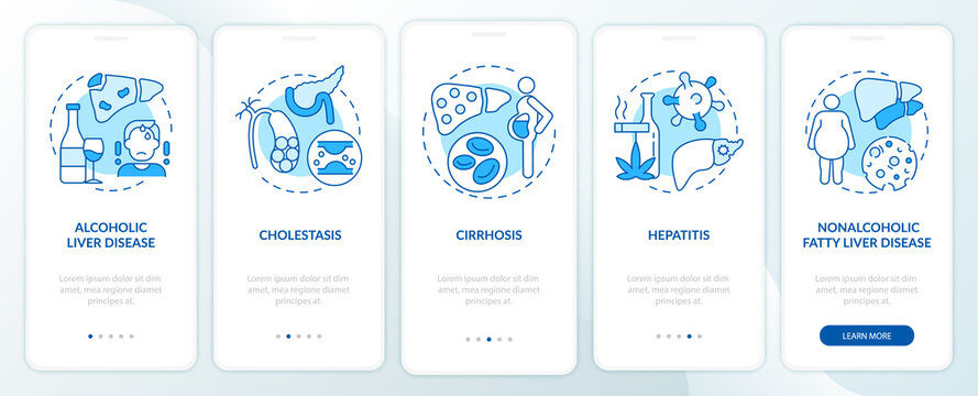 Hepatic disease types onboarding mobile app page screen with concepts. Fibrosis, cirrhosis walkthrough 5 steps graphic instructions. UI, UX, GUI vector template with linear color illustrations