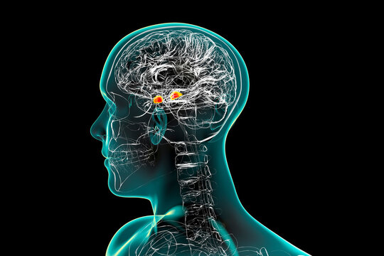 Amygdala, also known as corpus amygdaloideum, in the brain,