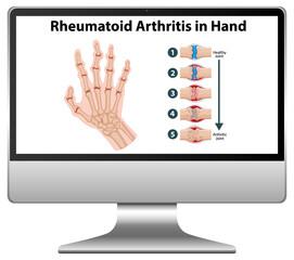 Rheumatoid arthritis symptoms on hand on computer desktop