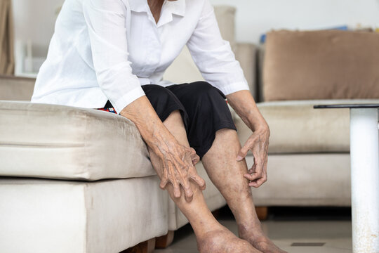 Hands of old elderly scratching legs,itching from mosquitoes,insect bites allergy or dry itchy skin, senior woman suffers from itching on legs,irritation,eczema symptoms,skin problems,skincare concept