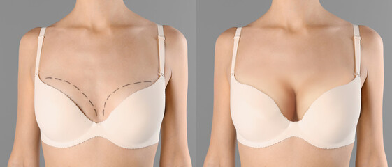 Collage with photos of young woman before and after breast size correction on grey background,...