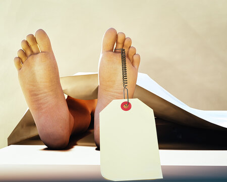 DOA dead body on coroner table. Feet showing with toe tag. Illustration
