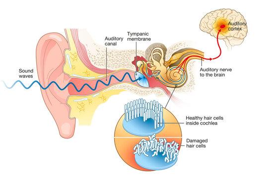 Tinnitus. Damaged hair cells inside cochlea