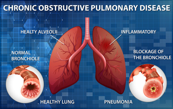 Lung with chronic obstructive pulmonary disease