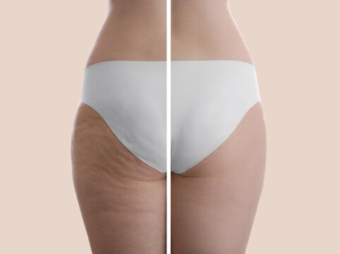 Collage with photos of woman before and after anti cellulite treatment on beige background,