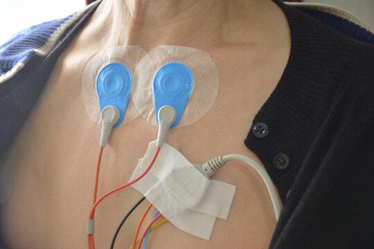 心電図 検査