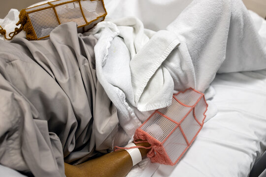 Hands of patient wearing protective equipment gloves to prevent pull the saline bottle,medical device or oxygen tubes,prevent the wound made by scratching on the skin during treatment at th hospital