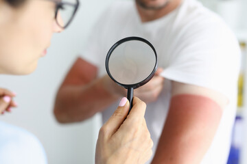 Doctor examining sunburns on patient arm using magnifying glass closeup