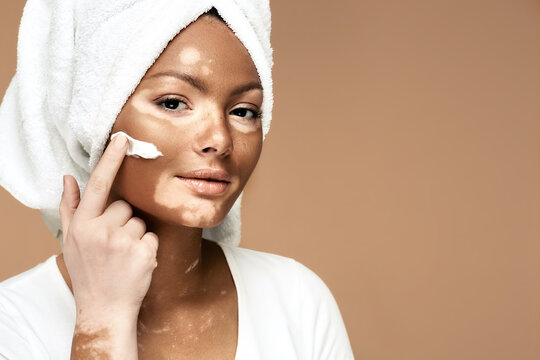 Moisturizing skin concept. African American woman with vitiligo applies moisturizing cream on her face, on a pastel background