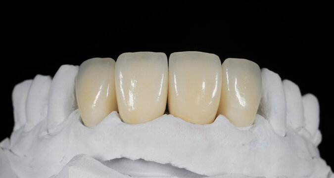 Dental zirconia crowns in the plaster model