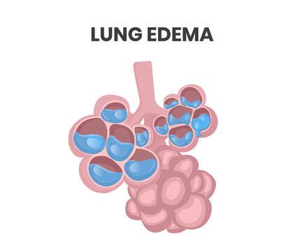 Lung edema illustration. Water collecting inside alveolar lumen