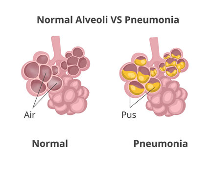 Normal lung alveoli versus pneumonia.