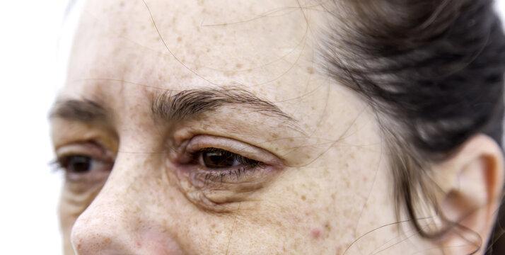 Dermatitis and allergy in eyes