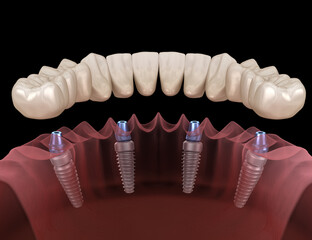 Fototapeta Mandibular prosthesis All on 4 system supported by implants. Medically accurate 3D illustration of human teeth and dentures concept obraz