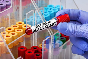 Doctor epidemiologist holding blood tube for test detection of virus Covid-19 Delta Variant with positive result. Doctor testing blood test tube from patient infected with Coronavirus Delta variant - fototapety na wymiar