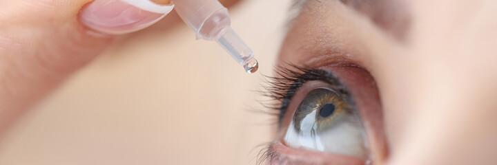 Fototapeta Woman drips eye drops into her eyes obraz
