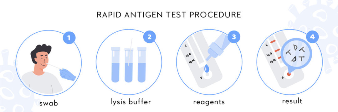 Covid-19 Rapid Antigen test procedure Infographic. A doctor takes nasal swab from male patient. Coronavirus swap sample in lysis buffer, strip with reagents and result with antigen molecules. Vector.