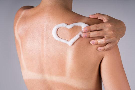 Sunburned woman, sunburn marks on the body, heart-shaped sunscreen on the back