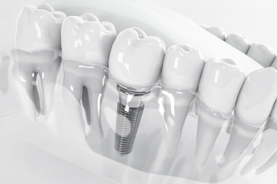 Detail of a false tooth implant fixed in the jaw